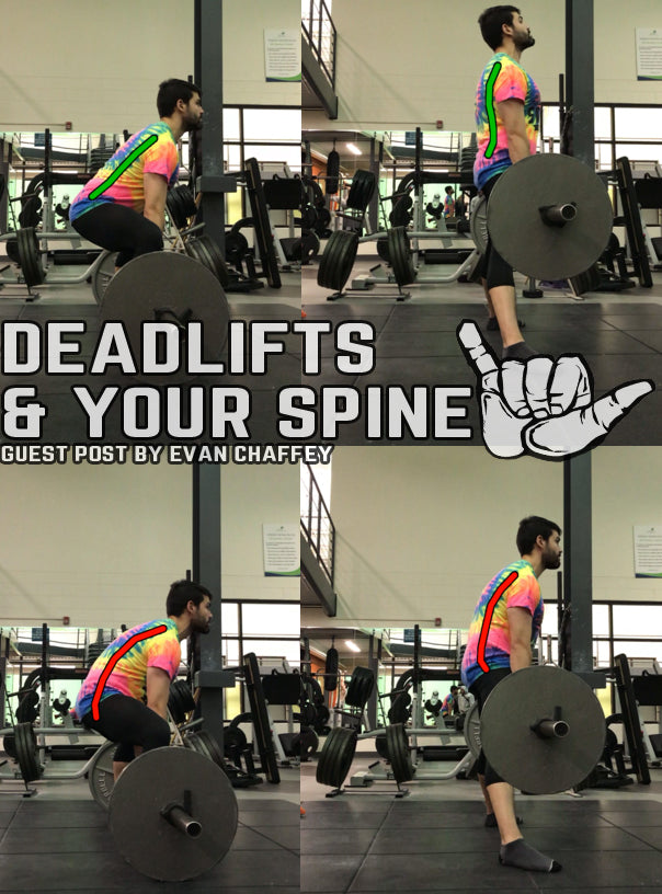 Deadlifts Your Spine Stoked Athletics