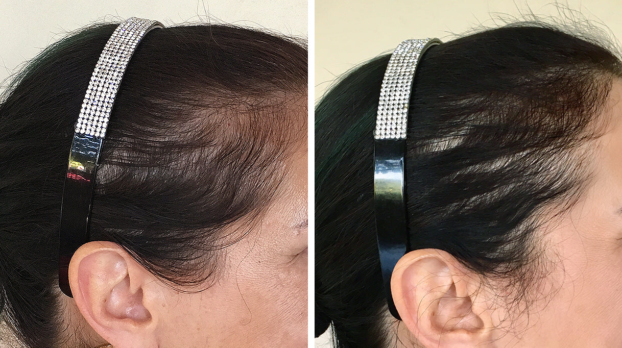 Irestore Laser Hair Growth System Fda Cleared Hair Loss Treatment