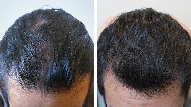 Phil S Testimonial Irestore Hair Growth System