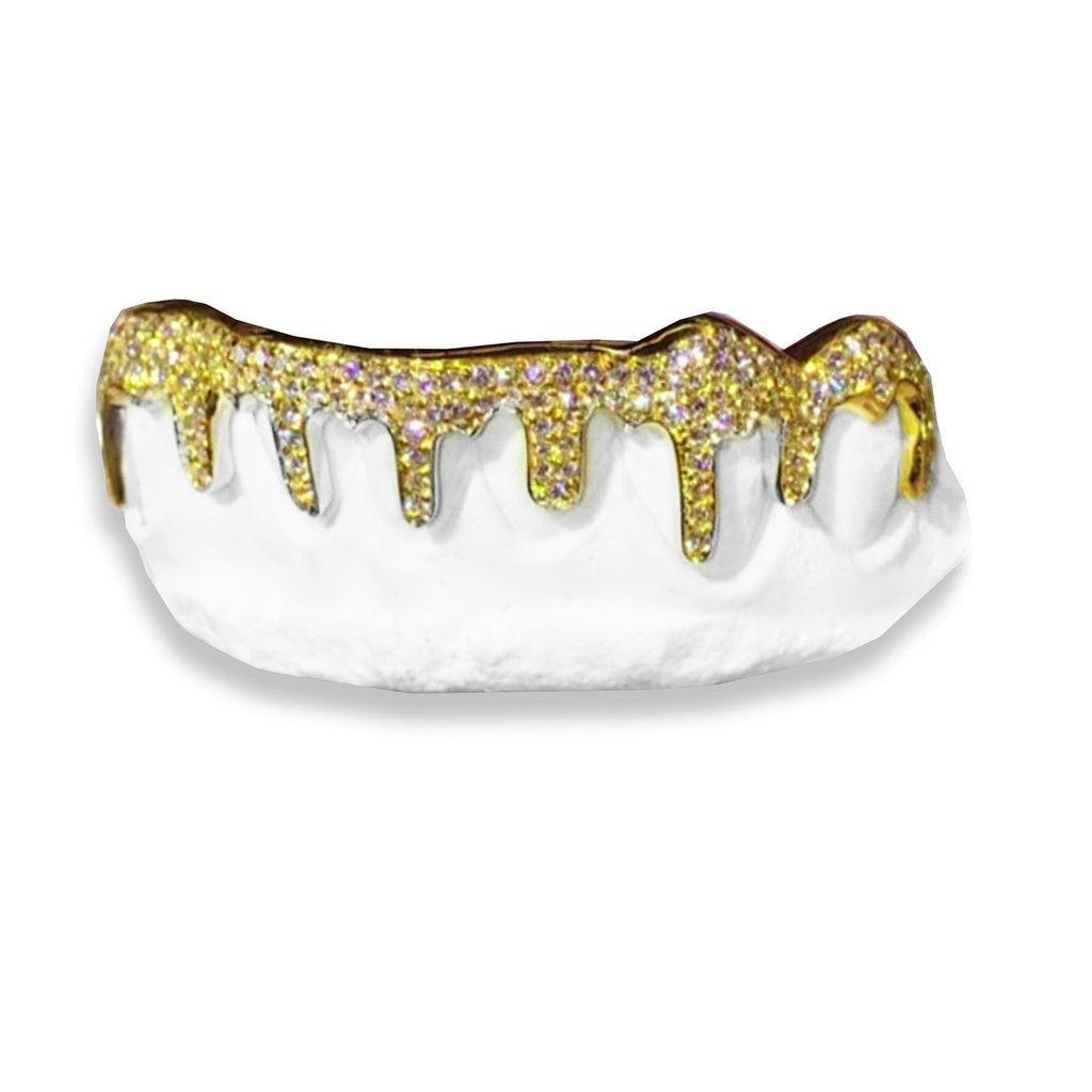 The Ice Cream-real-gold-custom-grillz
