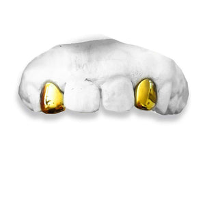 The OG-real-gold-custom-grillz