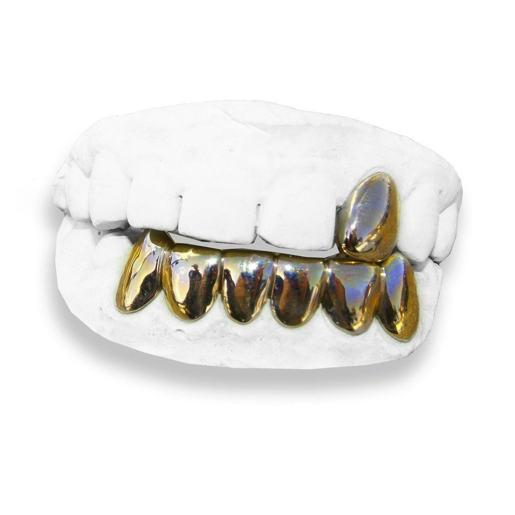 The Street Kid-real-gold-custom-grillz