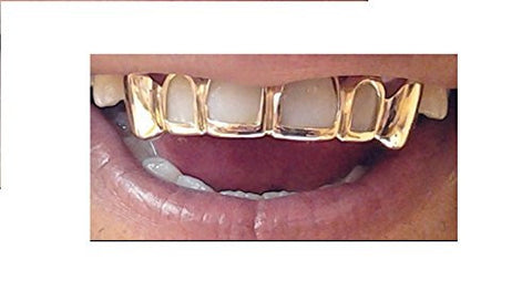 14k gold overlay removable Gold Teeth Grillz caps including the mold kit and shipping 6 teeth /m1 - myfamilystore