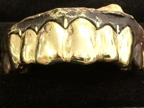 gold removable gold teeth caps including the mold kit and shipping 6 teeth /#q10k - myfamilystore