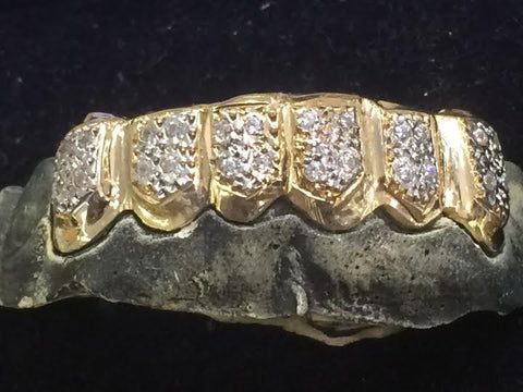 14k gold overlay removable Gold Teeth Grillz Grills caps mold kit and shipping 6 teeth 25 stone - myfamilystore