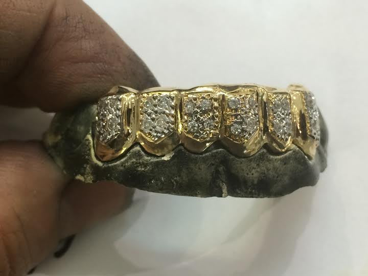 ... 14k gold overlay removable Gold Teeth Grillz Grills caps mold kit and  shipping 6 teeth 25 933fb0e75