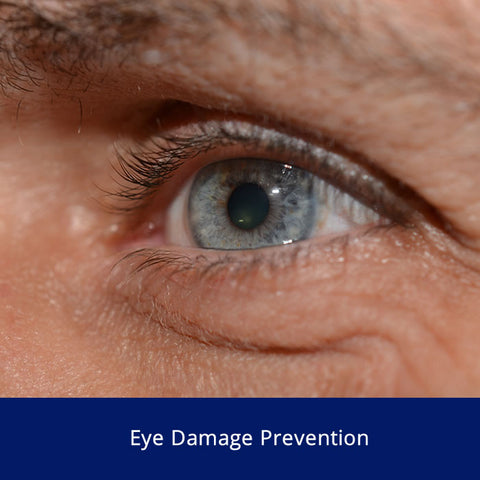 Eye Damage Prevention Safety Talk