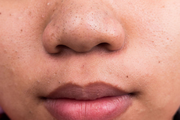 3 Natural Ways You Can Remove Blackheads
