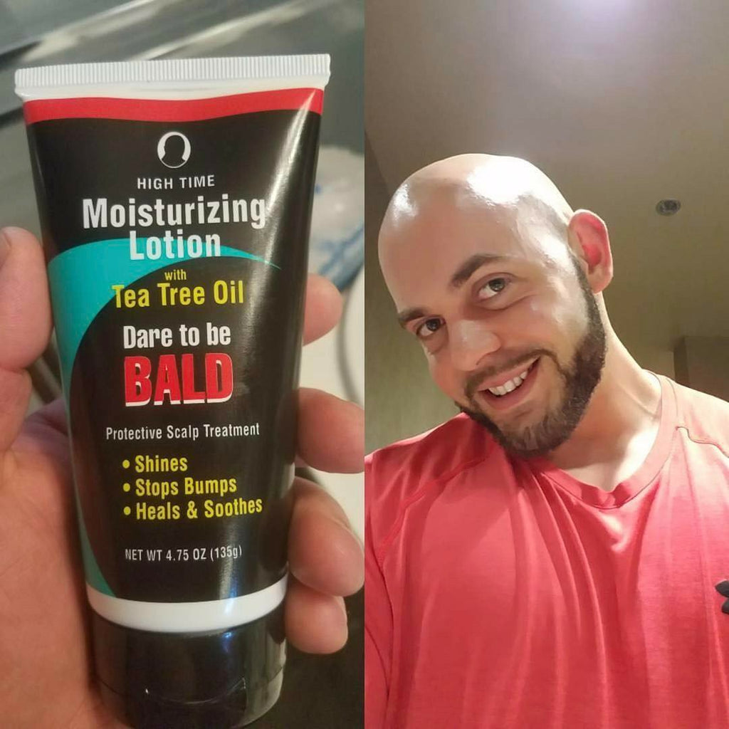 You Thought Being Bald was a Bad Thing? Think Again!