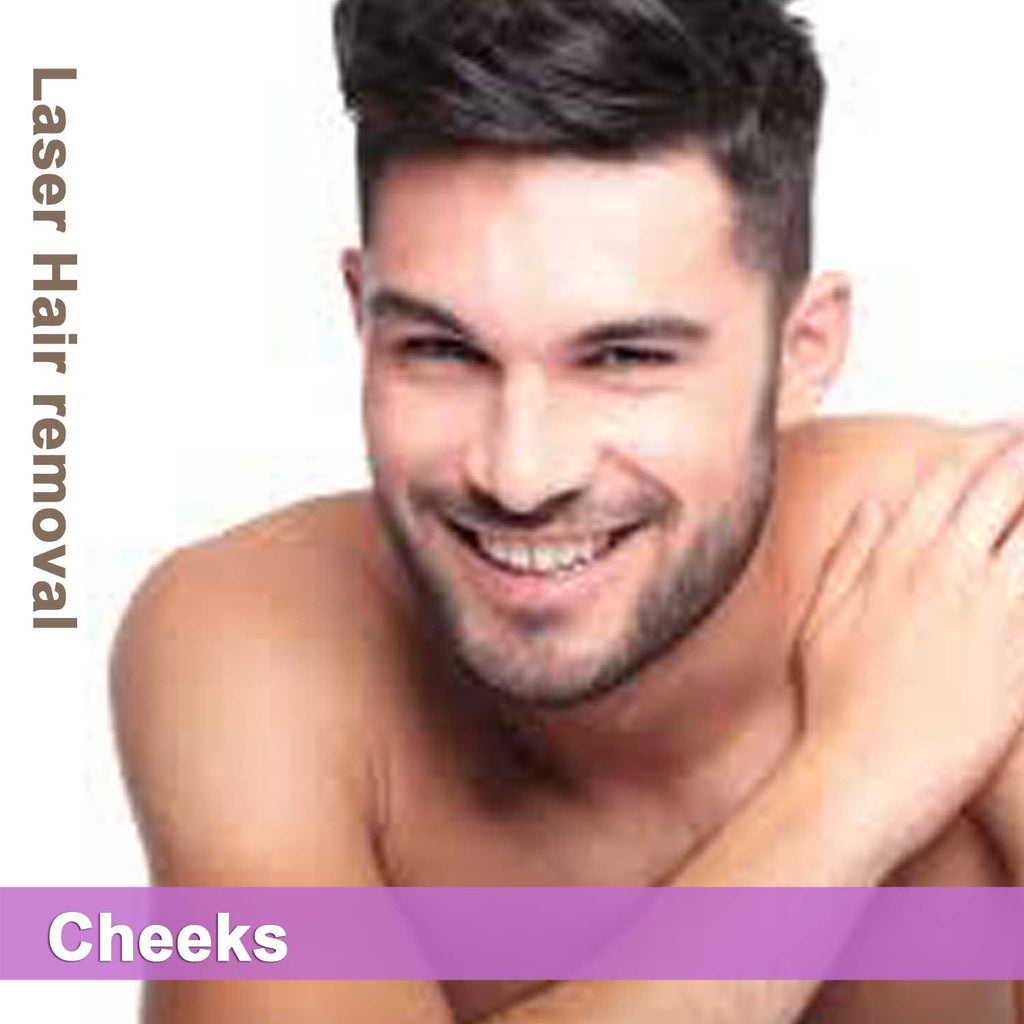 Cheeks - Laser Hair Removal for Men
