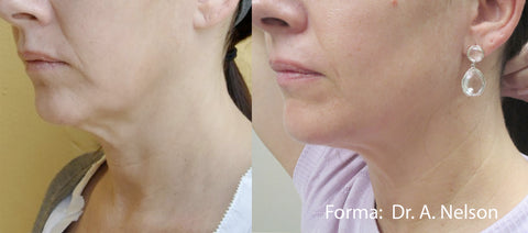 Forma skin tightening with Inmode technology