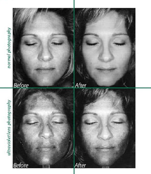 AFA Before and After Clinical Treatment South Surrey