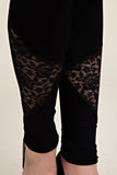 Vocal Black Lace Leggings