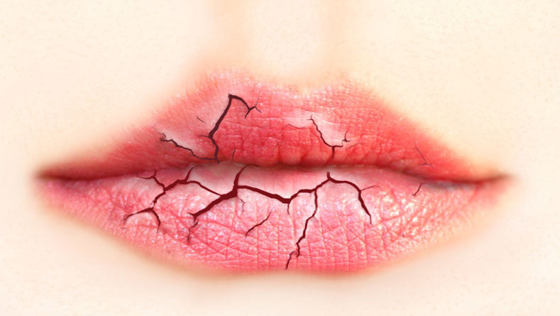 Dry Lips? Great Tips For Soft, Moisturized Lips