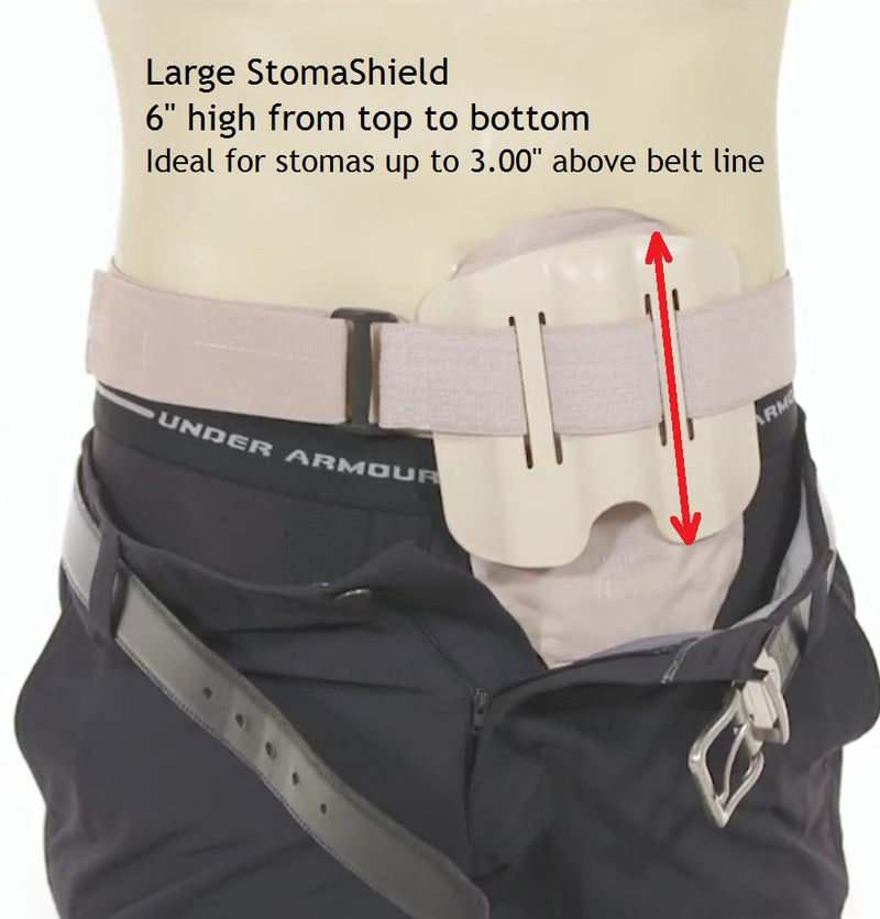 StomaShield Stoma Guard sizing