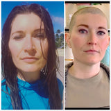 Survivor - Custom Cranial Hair Prosthesis - Cancer/Alopecia