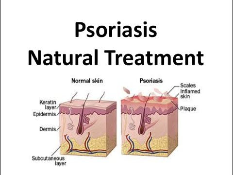 Psoriasis natural treatment image
