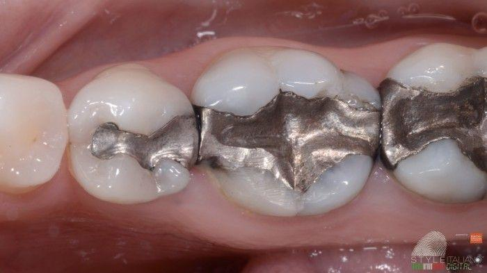 The ADA finally admits amalgam fillings are poison!