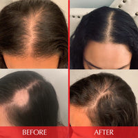 before and after photo of customer's scalp