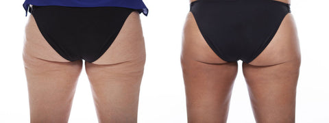 cleantan covers cellulite with self tanner