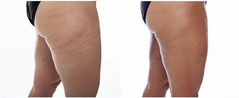 cleantan self tanner covers cellulite tan fat is better than white fat