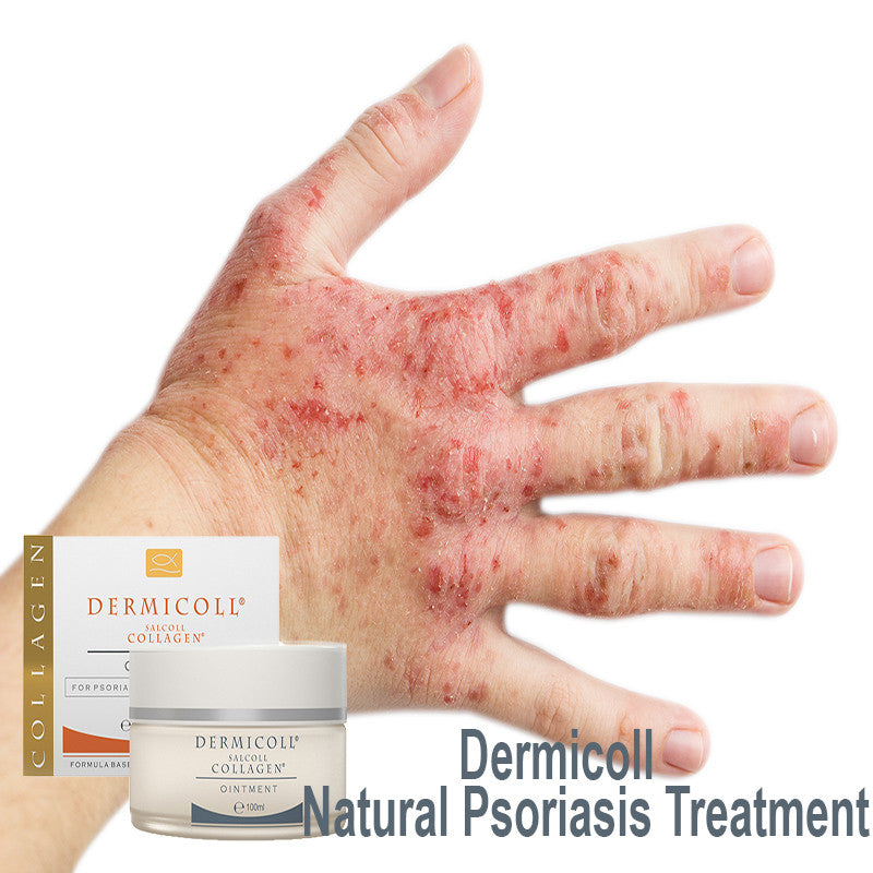 4 Reasons That Show Why A Psoriasis Treatment With Collagen Enriched Cream is Beneficial