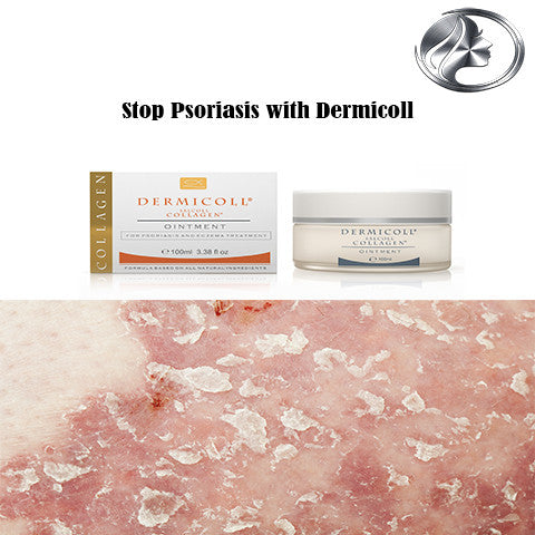 Dermicoll is Best For Psoriasis Treatment