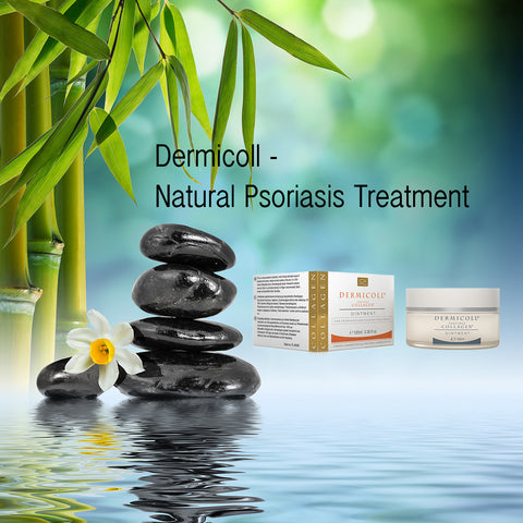 natural psoriasis treatment