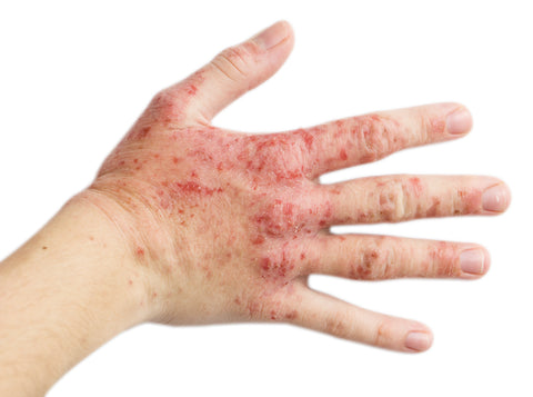 Treatment for Psoriasis and Eczema