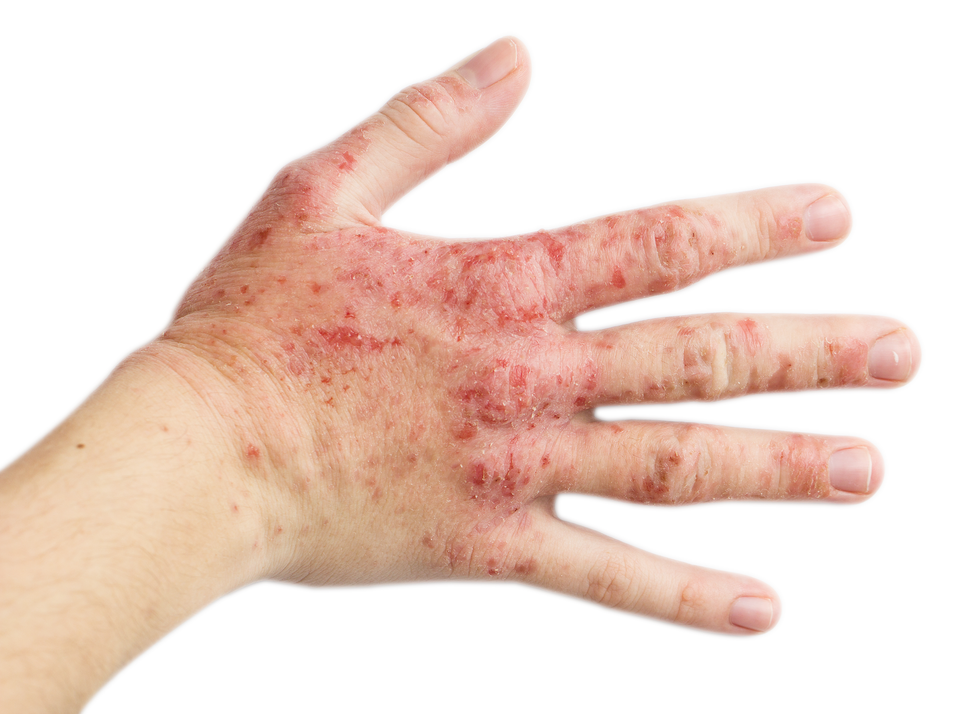 Powerful solution to treat psoriasis and eczema Steroids Free!!!