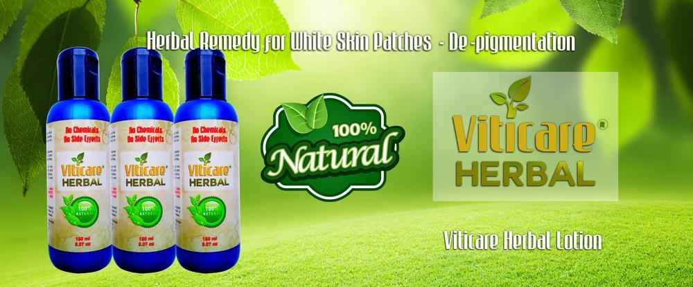 Viti Care Herbal and Natural Lotion to Cure Vitiligo