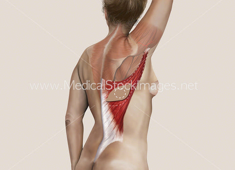 Latissimus Dorsi or Myocutaneous (LD) Flap Surgery No Labels