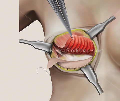 Illustration of the First Stage of Breast Surgery involving Soft Tissue Support