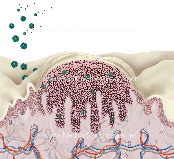 image of anatomy of a skin wart incoming virus � medical
