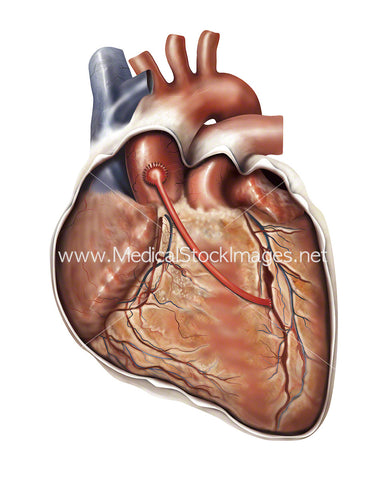 Illustration Showing a Coronary Artery Bypass Graft or CABG