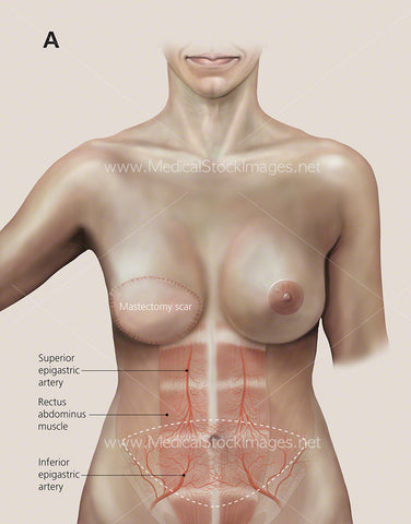 Breast Reconstruction called Transverse Rectus Abdominus (TRAM FLAP)