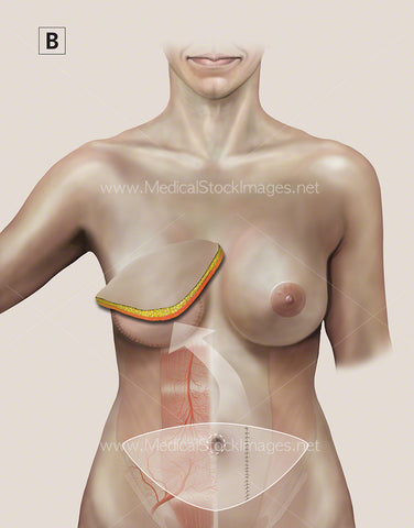 Breast Reconstruction called Transverse Rectus Abdominus (TRAM FLAP) No labels.