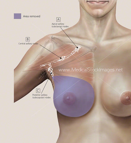 Total Mastectomy Colour Background