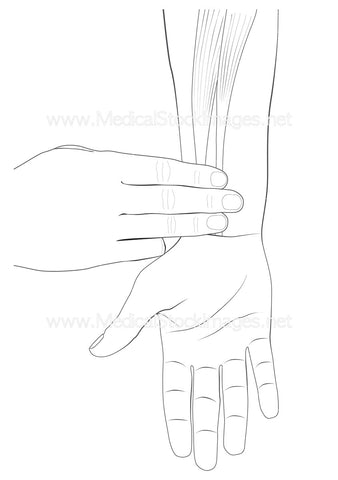 Neiguan Acupuncture Point with No Labels