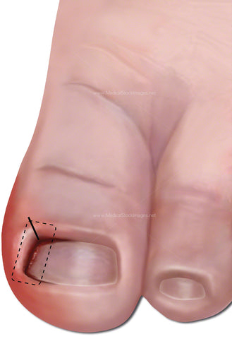 Ingrowing Toe Nail Rectified with Wedge Incision (Child)