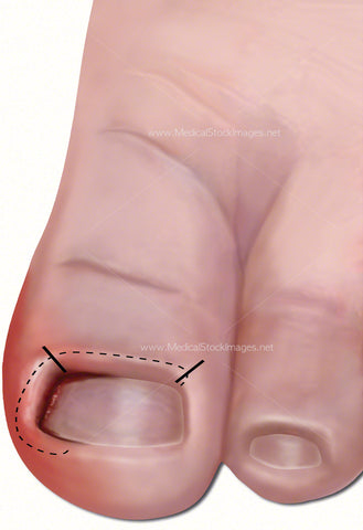 Ingrowing Toe Nail Rectified with Zadek's Incision (Child)