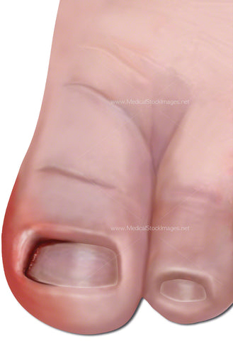 Ingrowing Toe Nail (Child)