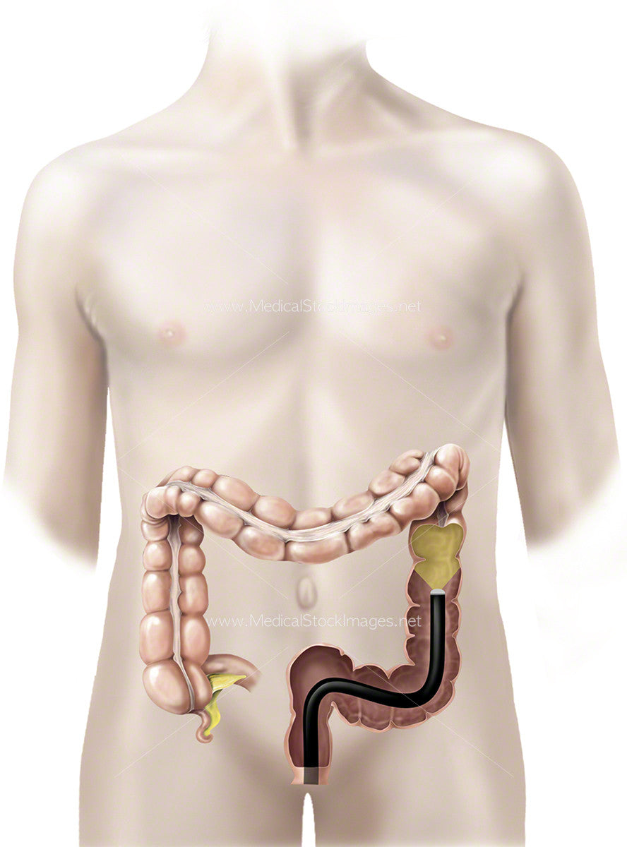 Large Bowel With A Colonoscope Adolescent Medical Stock Images