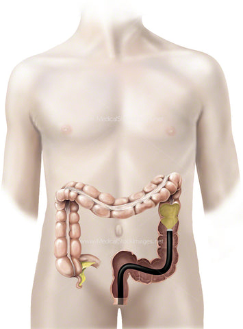 Large Bowel with a Colonoscope (Adolescent)