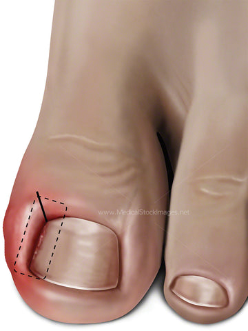 Ingrowing Toenail Treated with a Wedge Incision (Adult)