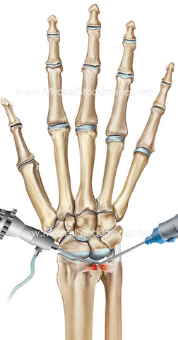 Wrist Triangular Fibro Cartilage Repair