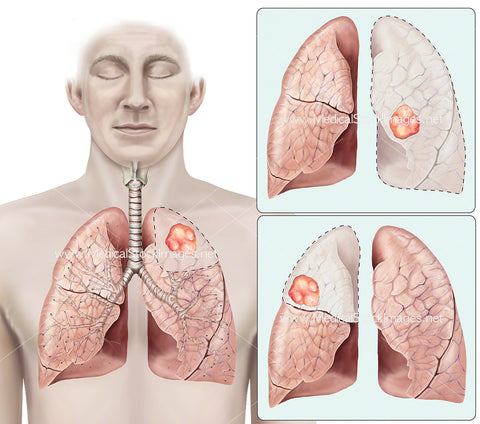 Varying Locations of Tumour on the Lungs