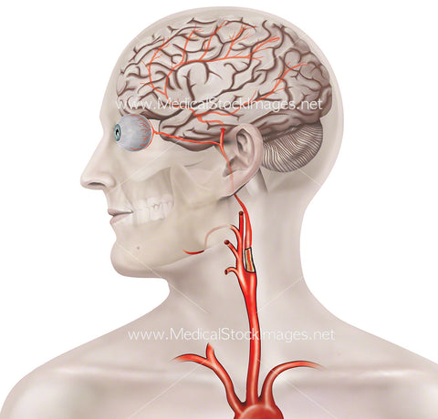 Blockage in the Carotid Artery