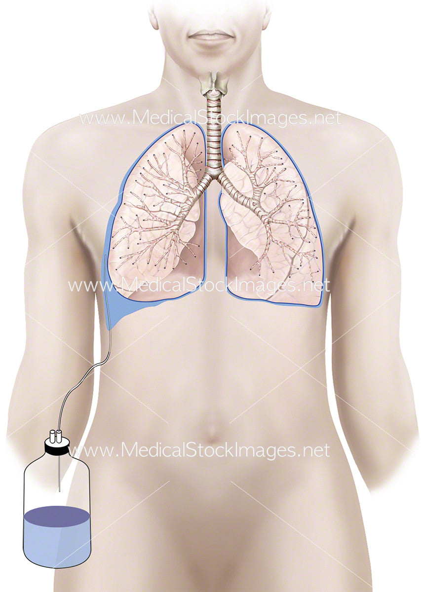 Chest Drain In Pleural Space Medical Stock Images Company