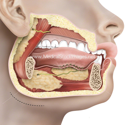 Submandibular Gland and Related Structures